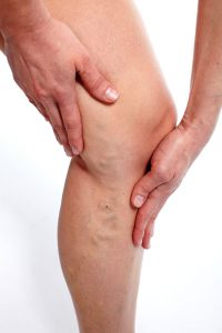 Cosmetic Surgeon near me for Varicose Vein