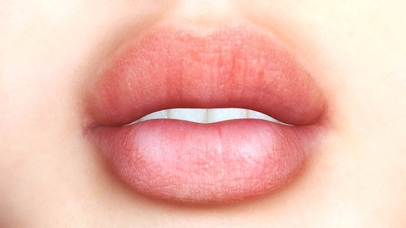 A Fuller Smile through Lip Augmentation in Los Angeles