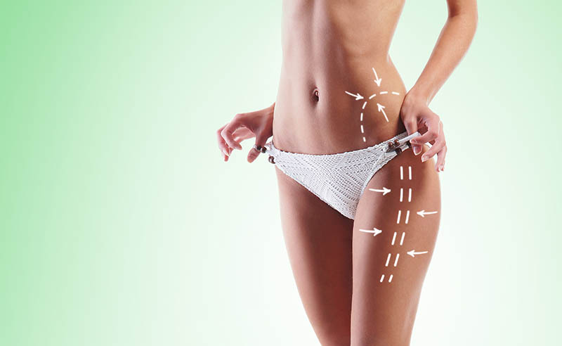 The Benefits of Liposuccion HD in Los Angeles