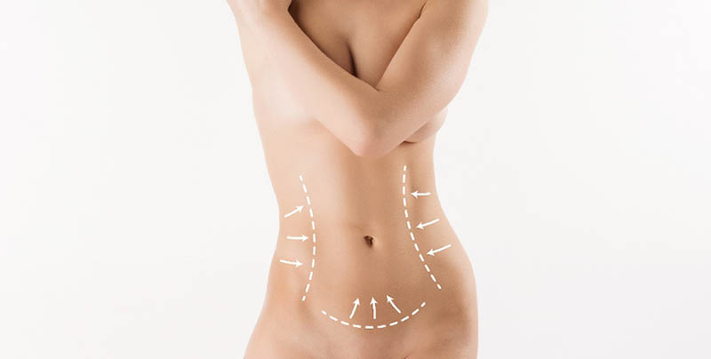 The Difference in Liposuction HD in Los Angeles