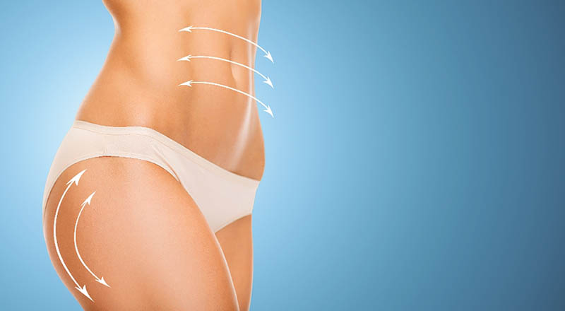 Understanding the Liposuction Procedure in Los Angeles