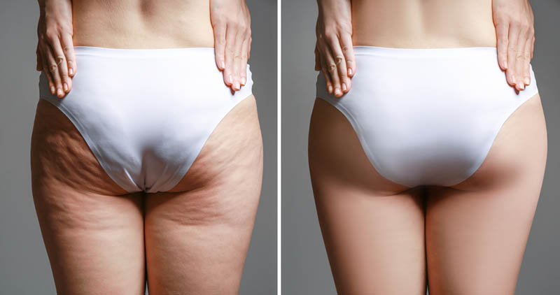 the Best Liposuction Doctors in Los Angeles