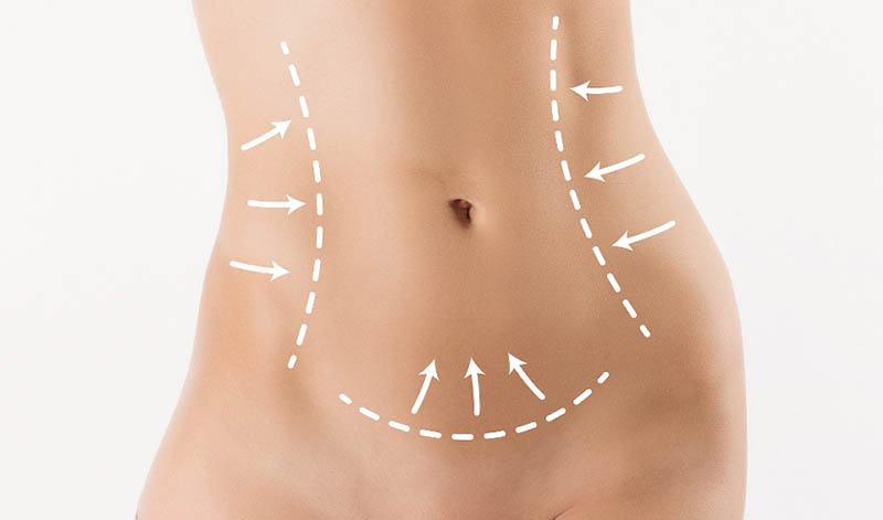 Liposuction with VASER in Los Angeles
