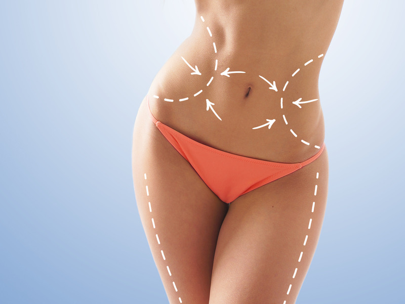 Reasons You Should Have Lipo Hi Def in Los Angeles
