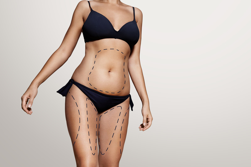 Try the Most Modern Form of Lipo in Los Angeles Surgery