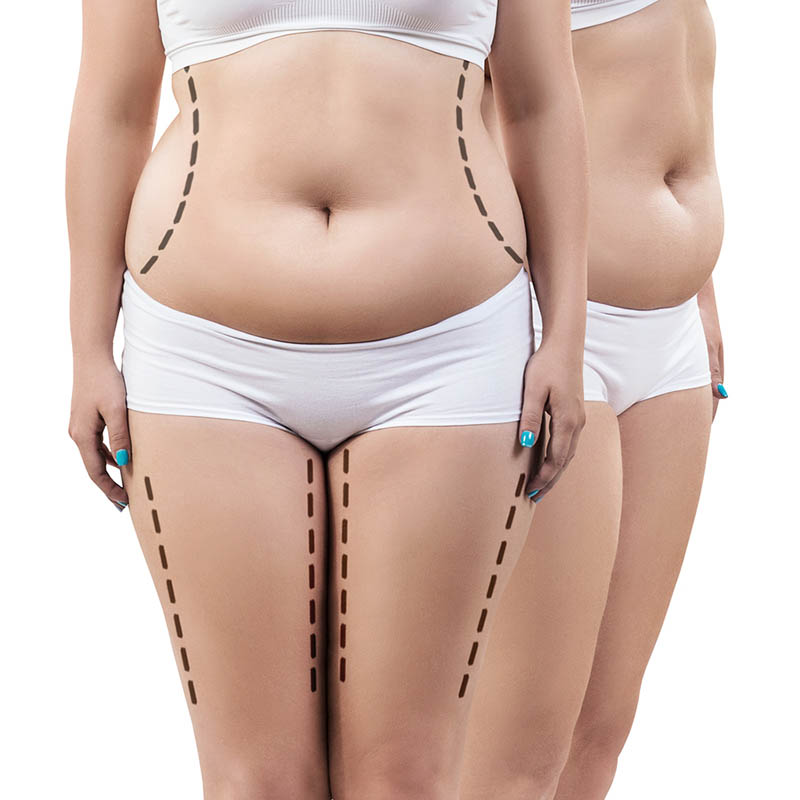 Lipo HD in Los Angeles