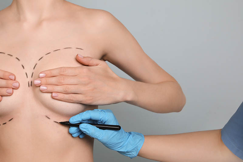 quality breast augmentation in Los Angeles