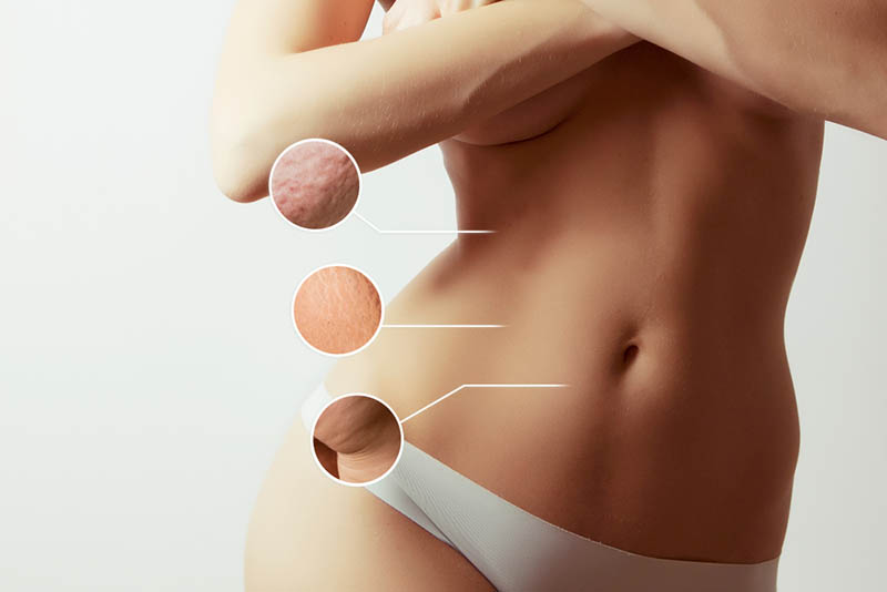 Liposuction in Los Angeles