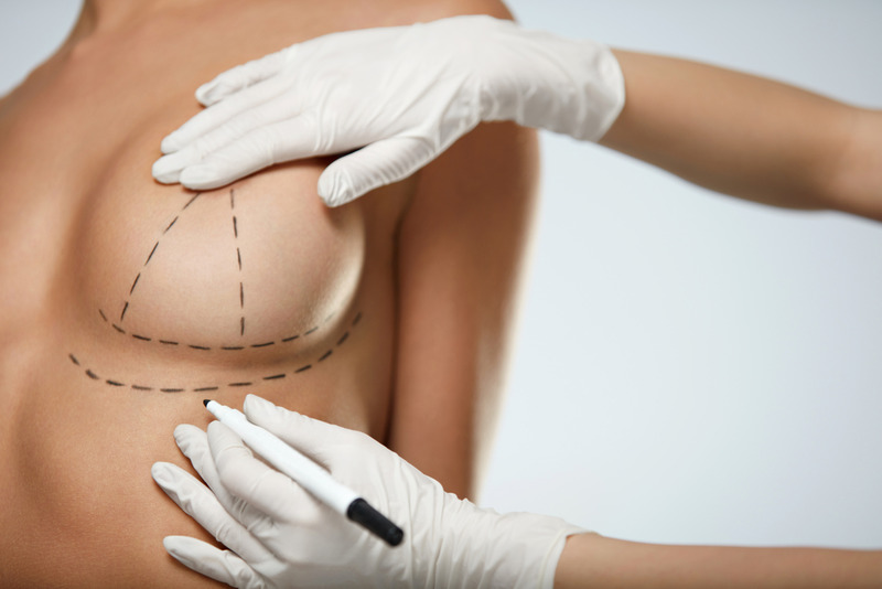 Top Breast Augmentation in Los Angeles1