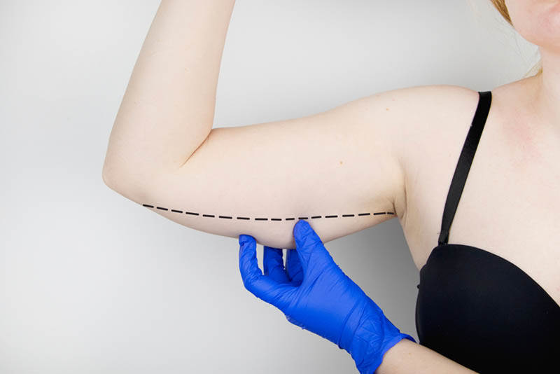 Doctor Performing Vaser Liposuction in Los Angeles