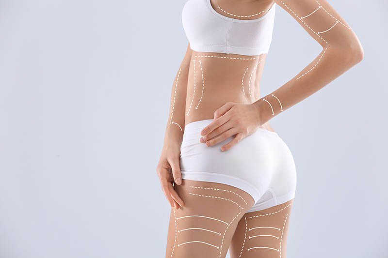 best liposuction in los angeles