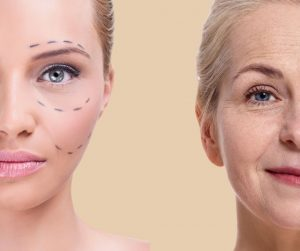 cosmetic surgery in Venice