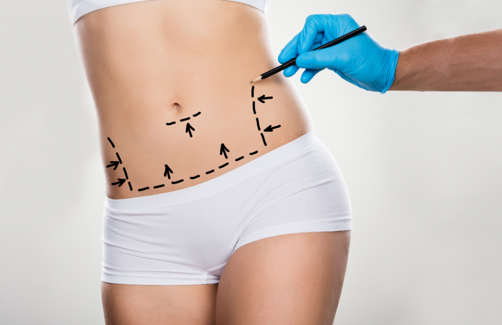 liposuction HD Los Angeles