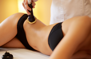 High Definition Liposuction in Los Angeles