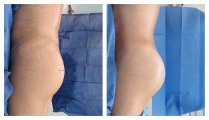liposuction in Los Angeles