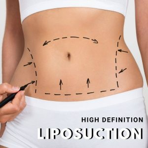 liposuction for Los Angeles