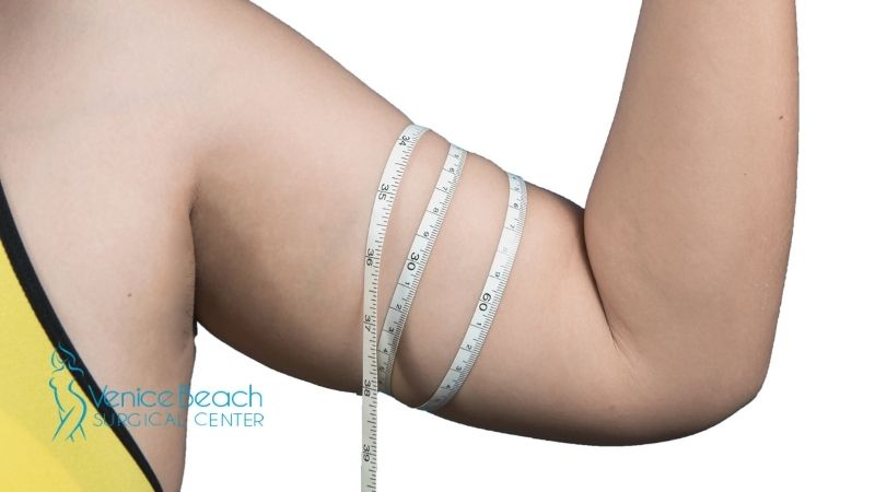 Arm Liposuction in Los Angeles