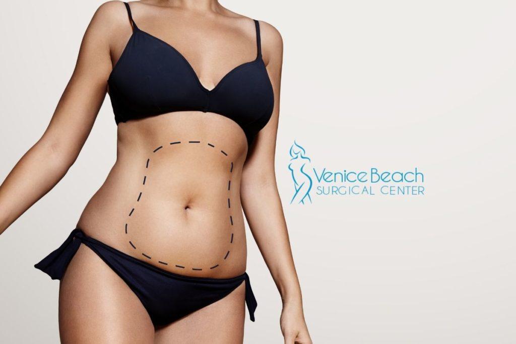 best liposuction surgeons in Los Angeles